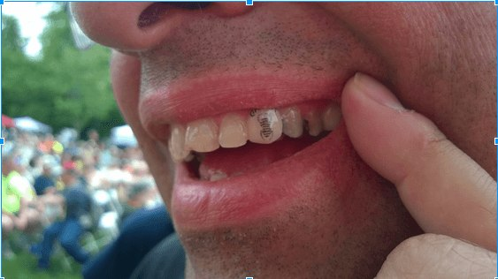 toothtrackable